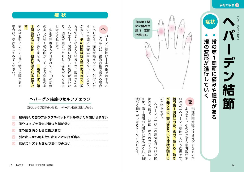 「手指の疾患で代表的な「ヘバーデン結節」の例」紙面